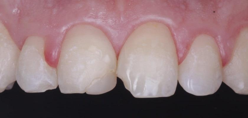 Реставрация зубов 1.1, 2.1