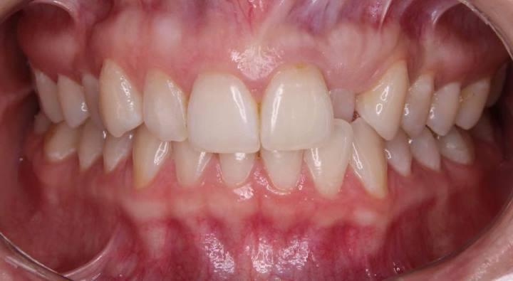 Титановая ортодонтия