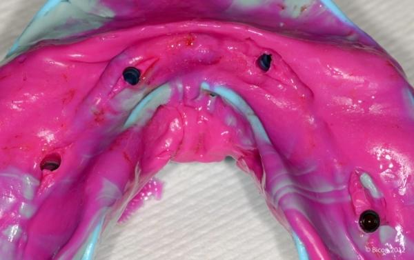 Зелёные и синие оттискные накладки в оттиске поверхности арки импланта.