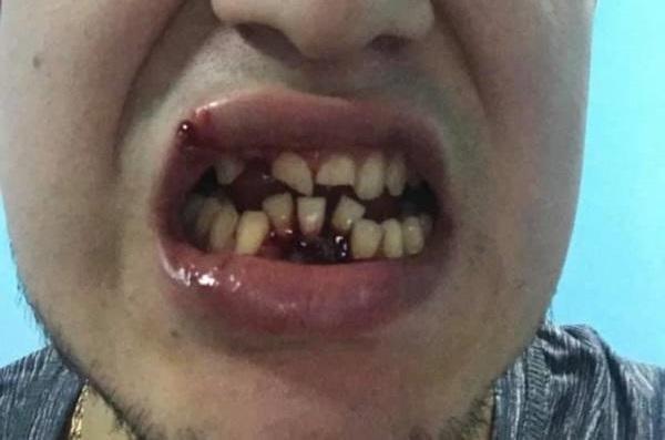 Хоккей без защиты - зубы на ветер