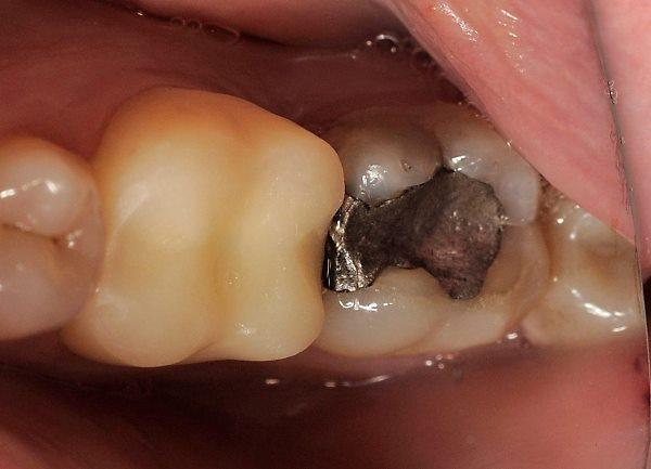 Использование готовых силиконовых штампов Occlu-Print для реконструкции окклюзионной поверхности зуба