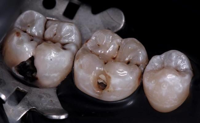 Лечение кариеса 46 и 47 зубов